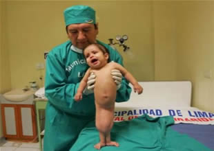 Perulu mucize bebek artık adım atabiliyor